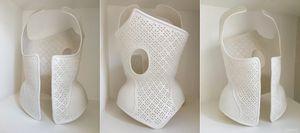 Физиотерапевт из италии создает ортопедические корсеты на 3d-принтере (7 фото + 2 видео)